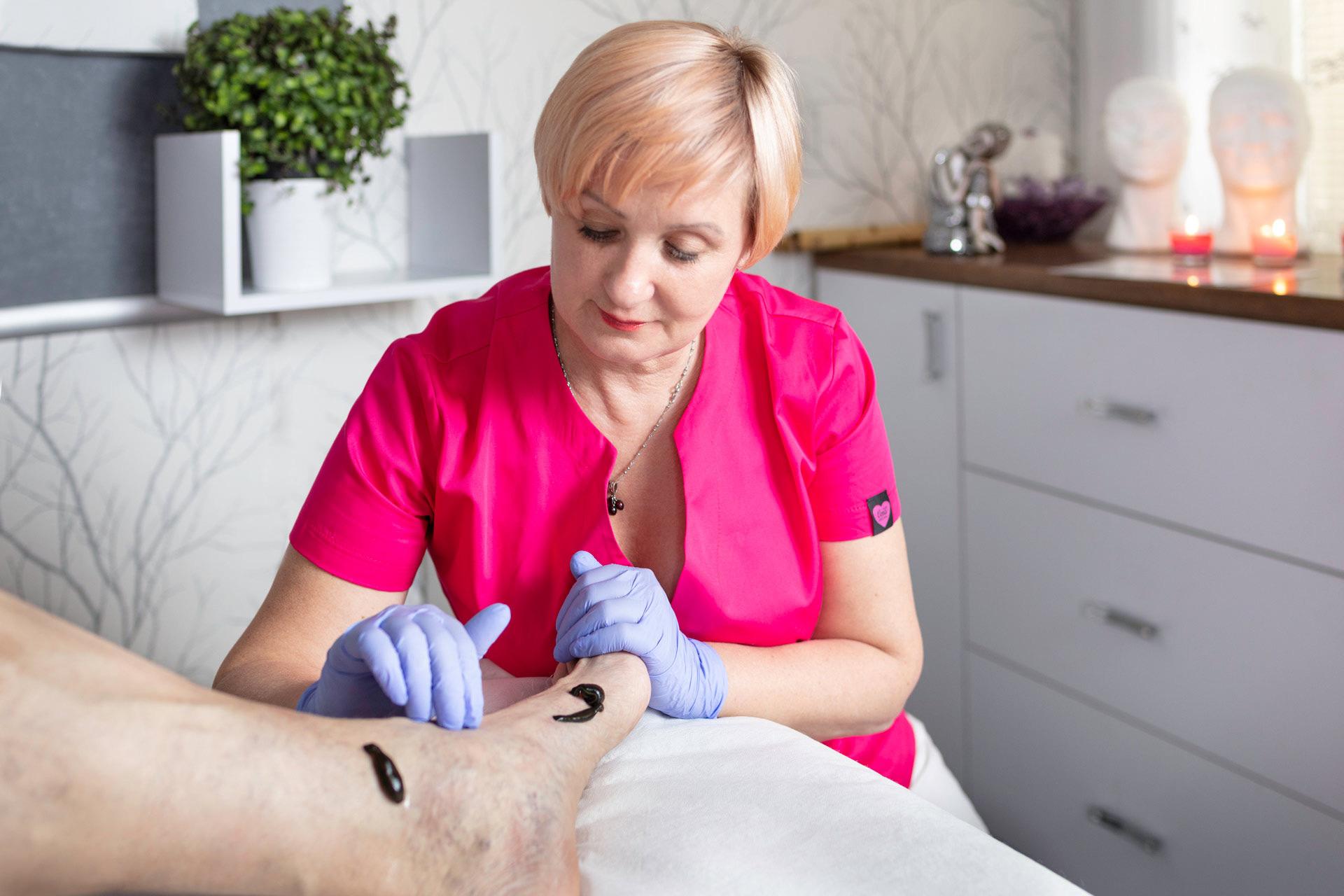 hirudoterapia pijawki